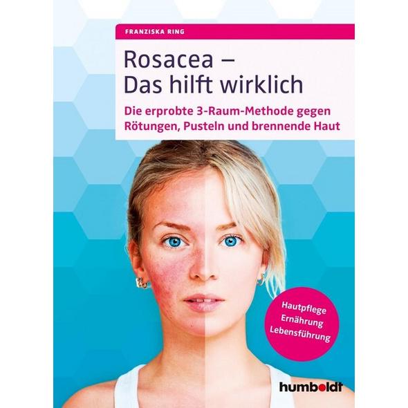 Rosacea – Das hilft wirklich